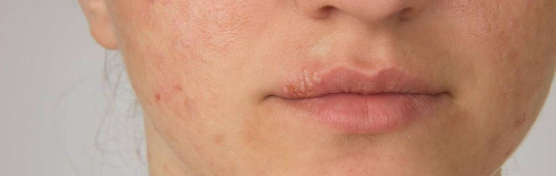 Skin Issues? It Could Something You're Eating